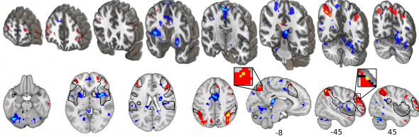 fMRI activity during pain is reduced in the areas shown in blue. Many of these are involved in constructing the experience of pain. Activity is increased in the areas shown in red and yellow, which involve the control of cognition and memory. (Image provi